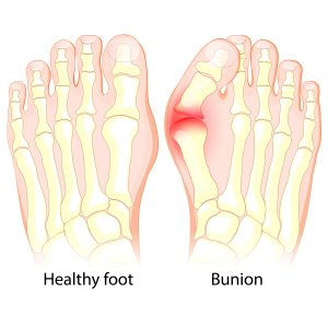Bunion surgery, foot and ankle center Orthopaedic Associates of St Augustine