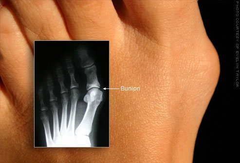 Bunion Treatment Jacksonville | St. Augustine Bunion  of Billing joint injections