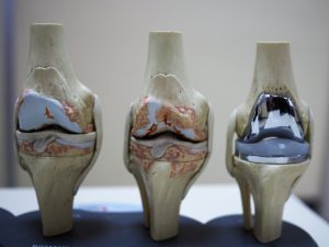 Knee Replacements in St. Augustine