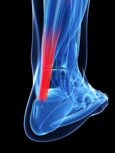 achilles tendon treatment and recovery