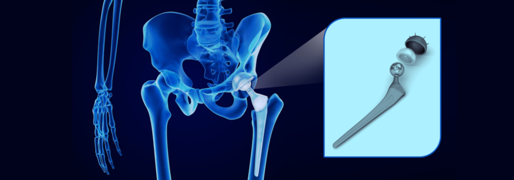 Hip Replacement FAQ in St Augustine