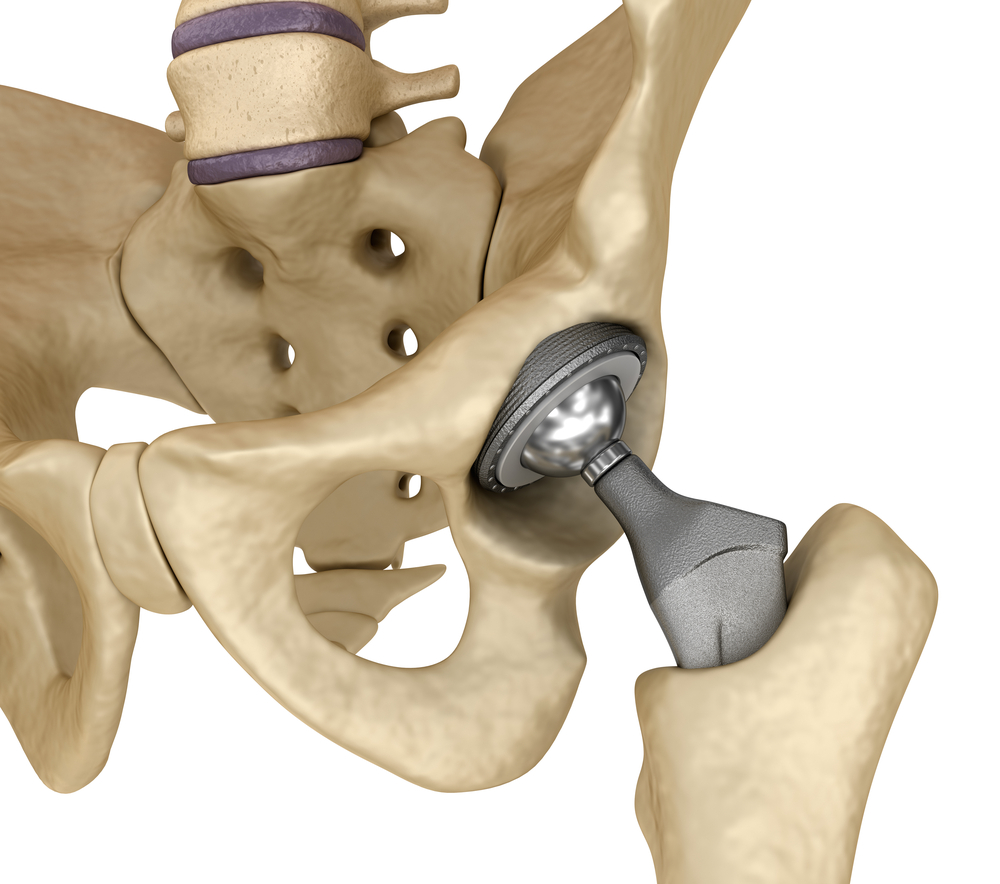 What to Know about Knee Replacements