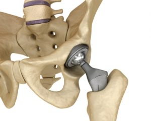 What you need to know about Hip Replacements in St Augustine