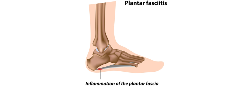 plantar fasciitis treatment and recovery in St Augustine