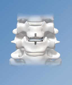 Cervical Disk Replacement image