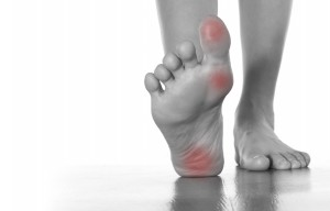 Painful Corns and Calluses