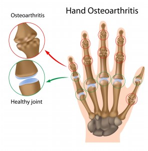 Find the Right Treatment for Your Arthritis Pain