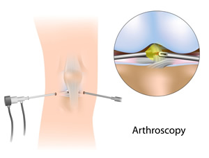 Arthroscopic Surgery St. Augustine