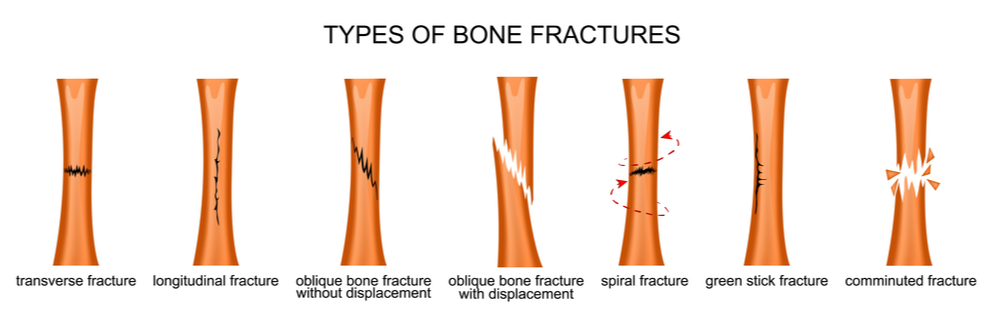 Don't Let a Fracture Go Untreated St Augustine