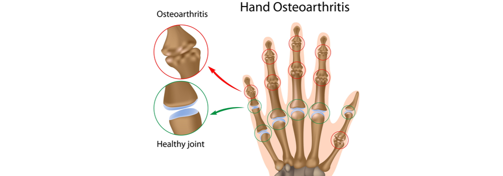 Treatments for Arthritis Pain in St Augustine
