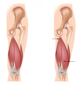 Hamstring injuries and tears