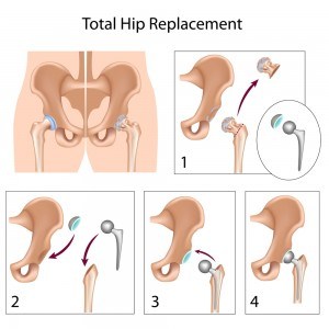 hip replacement, Orthopaedic associates St Augustine | St Johns