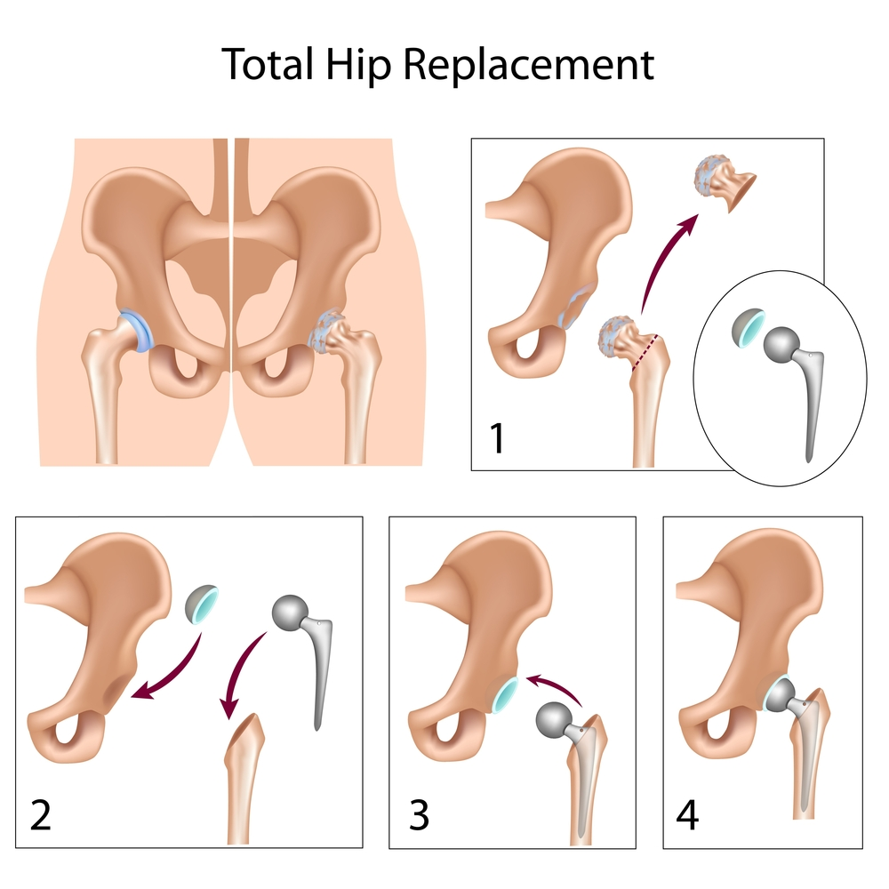St Augustine Hip Replacement Jacksonville Resurfacing Hip
