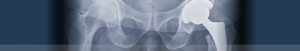 xray of hip replacement | Orthopaedic associates