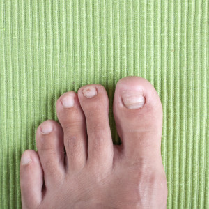 Treatments of ingrown toe nails