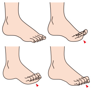 diagnoses and treatment of hammertoes