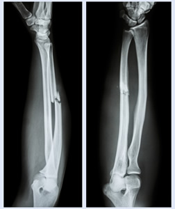 Bone-Fracture X-ray