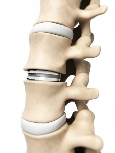 vertebral implants St. Augustine