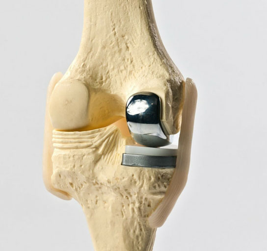 Unicondylar Knee Replacement | Orthopaedic Associates of St. Augustine