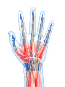 Nerve Damage Hand
