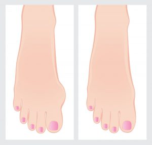 Bunion Surgery: What To Expect