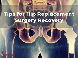tips for hip replacement surgery recovery