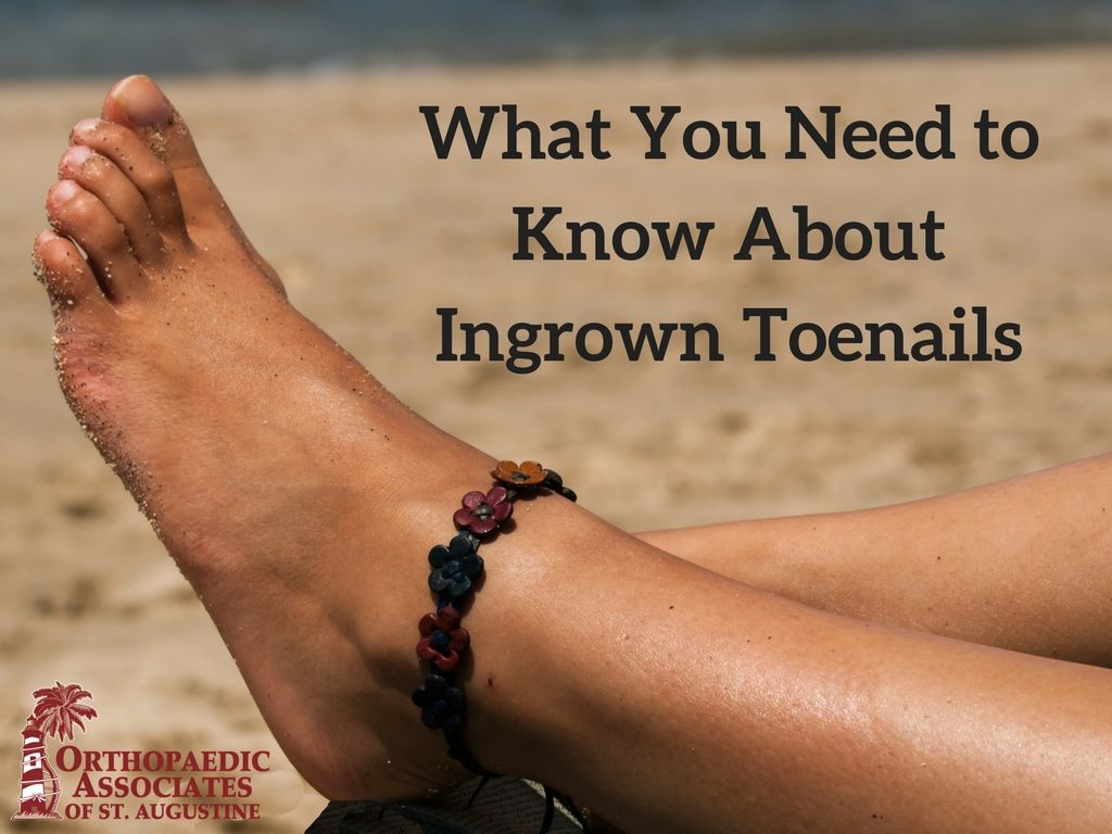 What You Need To Know About Ingrown Toenails