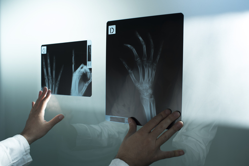 Hand and Wrist Center – Tumor Removal