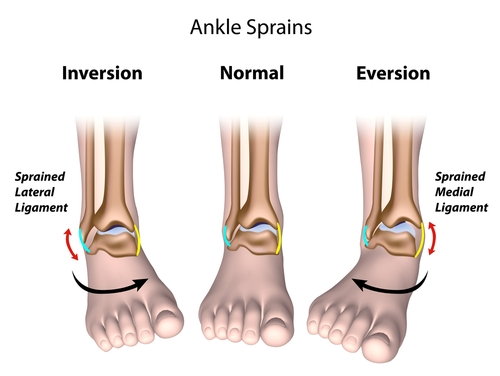 Ankle Sprains: High vs. Low
