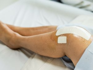 Common Knee Replacement Surgery Myths