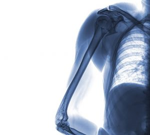 elbow and shoulder xray