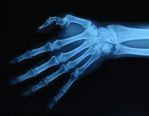 x-ray of finger fracture