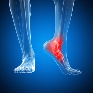 Foot and Ankle Nerve Injuries