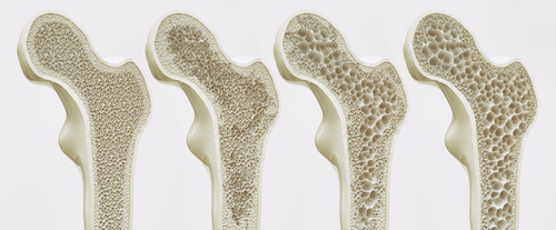 Osteoporosis St. Augustine
