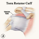 Figure 3, torn rotator cuff