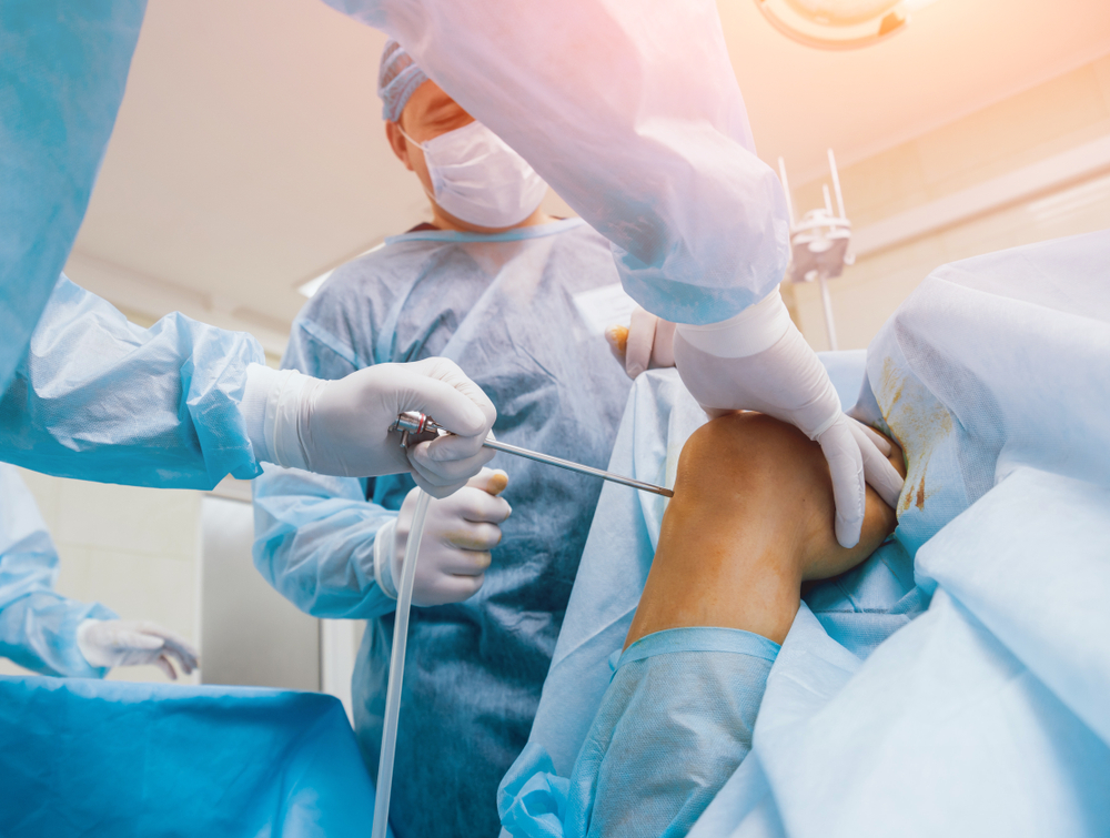 Arthroscopic Surgery for Sport Injuries in St. Augustine