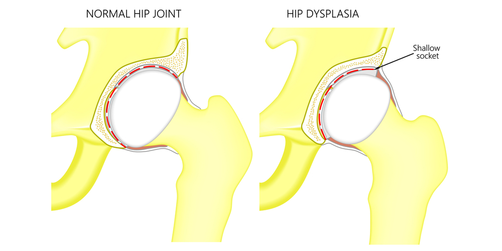 Periacetabular Osteotomy for Hip Dysplasia in St. Augustine