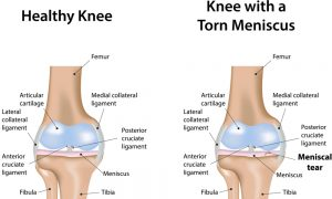 Factors That Affect Recovery After a Meniscal Tear Operation