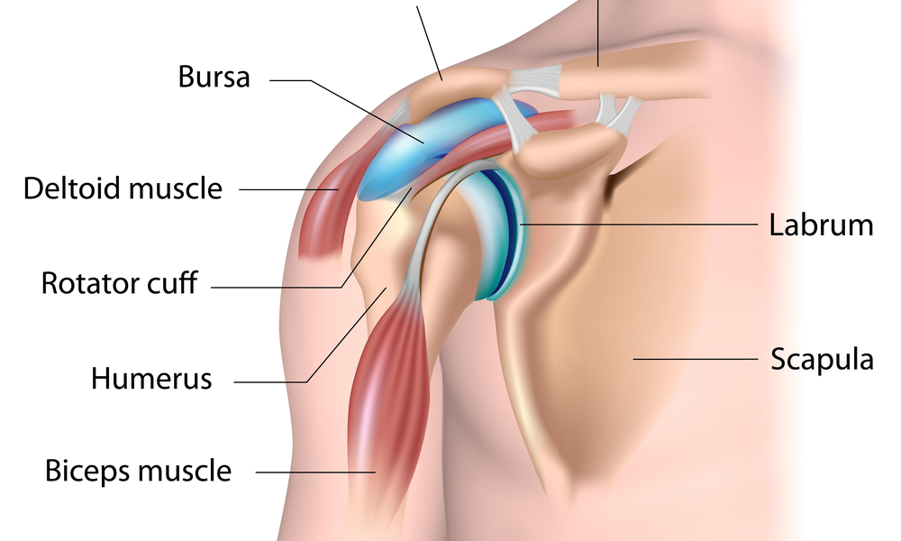 Diagnosing and Treating a Labral Tear of the Shoulder