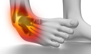 Sprained Ankle vs. Broken Ankle: How to Tell the Difference
