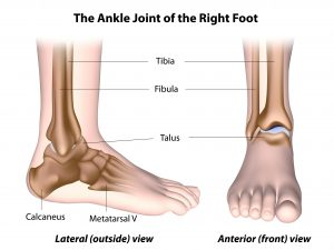 Ankle bones, ankle dislocation