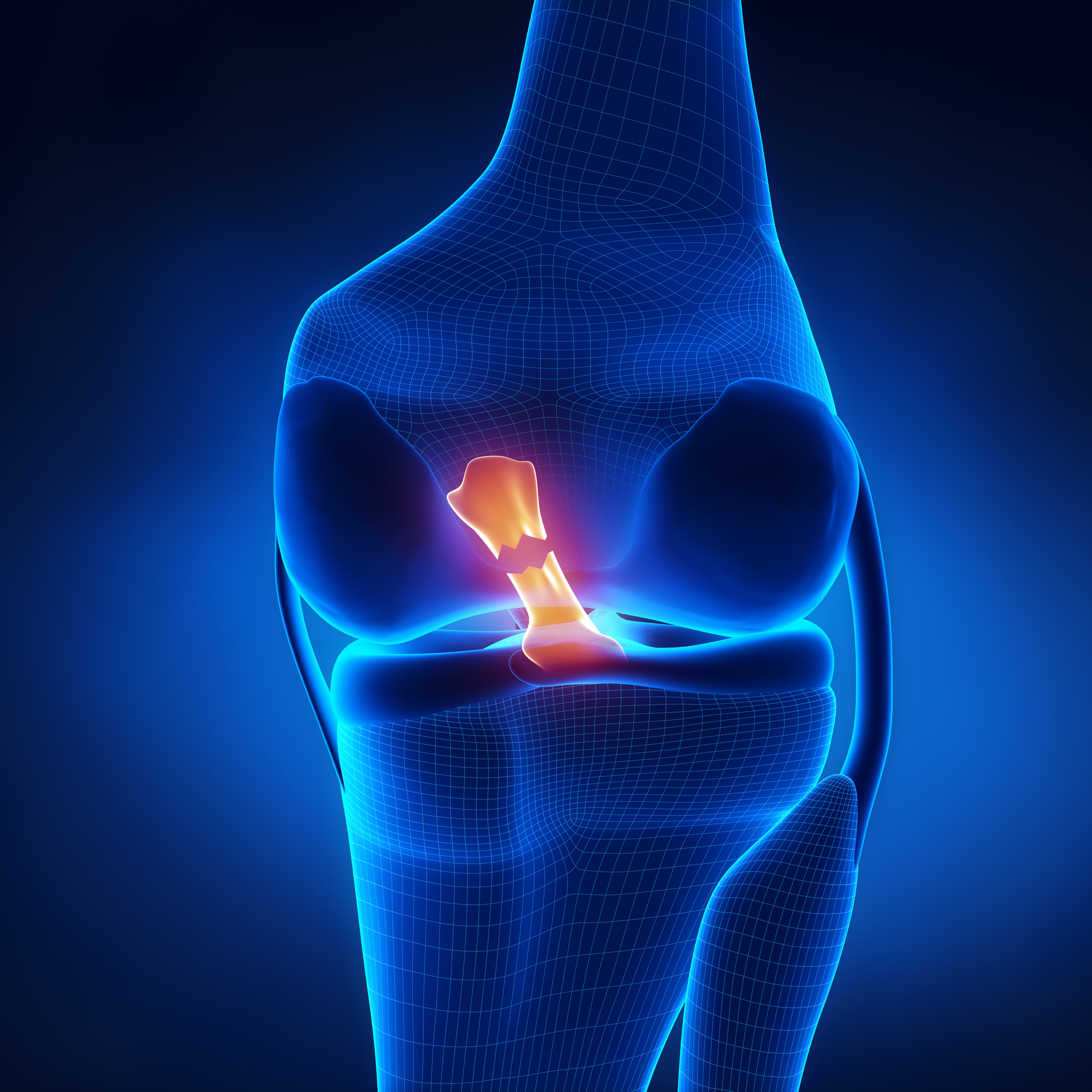 What Is the Difference Between an ACL Tear and an ACL Sprain?